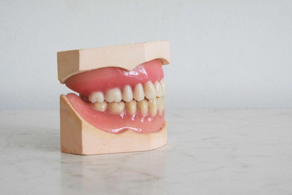 Segera Hentikan, Ini 5 Kebiasaan yang Dapat Membuat Gigi Berantakan