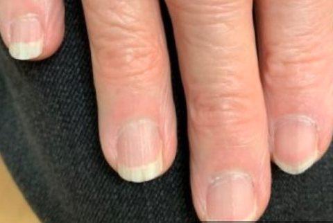 Brittle Nail Syndrome: Penyebab, Gejala, Pengobatan, dan Pencegahan